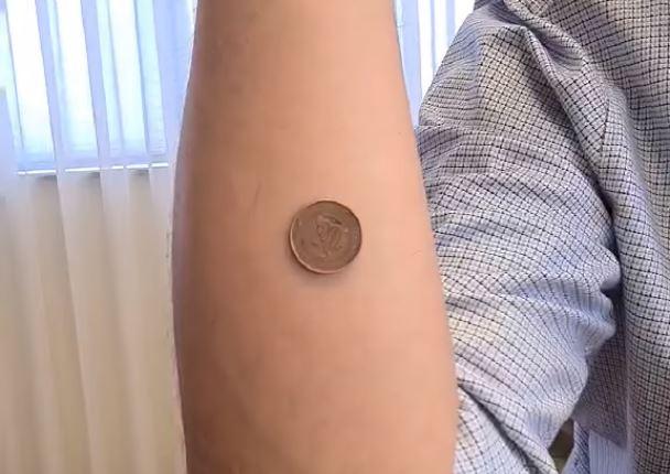 Srdjan Rajcevic vakcinisanje