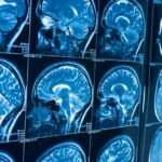 mozak snimak EEG
