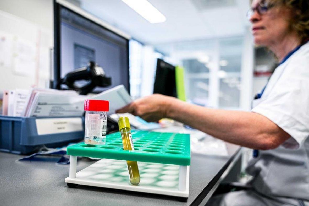 testiranje laboratorija koronavirus mart20 EPAEFE